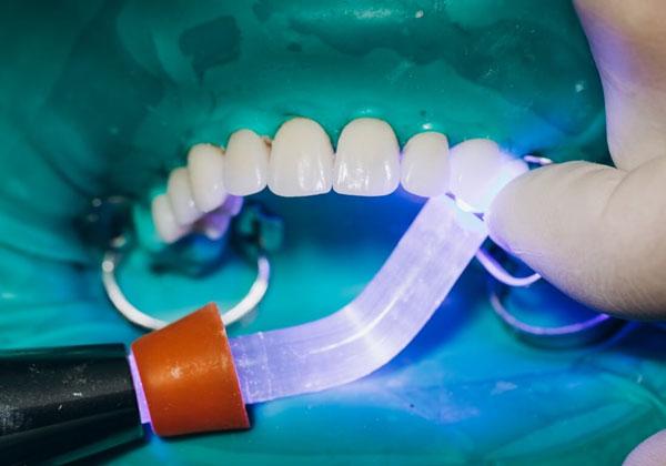San Dentist là địa chỉ phủ sứ thẩm mỹ chuyên sâu, ứng dụng công nghệ hiện đại
