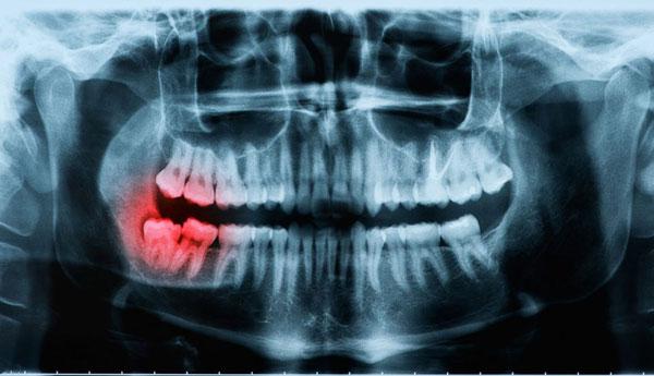 Một số trường hợp răng khôn mọc lệch gây nguy hiểm cần phải nhổ bỏ