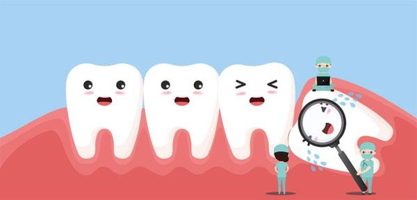 Những điều cần lưu ý khi nhổ răng khôn
