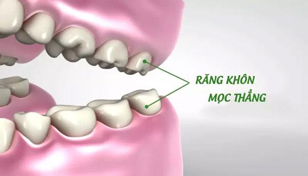 Trong một số trường hợp có thể bảo tồn giữ răng khôn