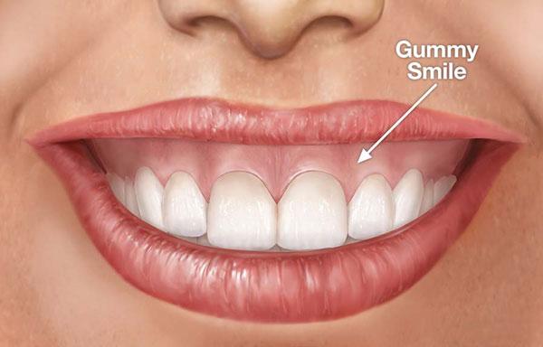 Nụ cười hở lợi ảnh hưởng nghiêm trọng đến tính thẩm mỹ khuôn mặt