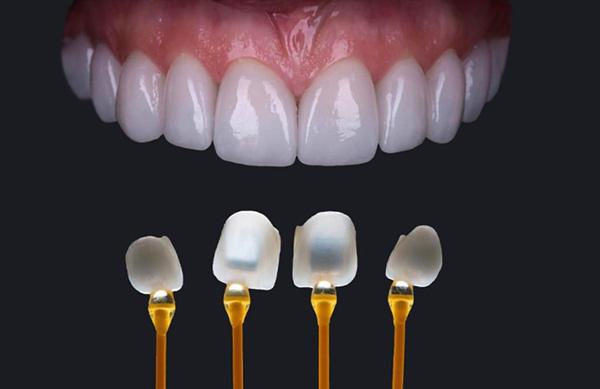 mặt dán sứ Veneer là phương pháp thẩm mỹ giúp hàm răng của bạn che giấu một cách nhanh chóng