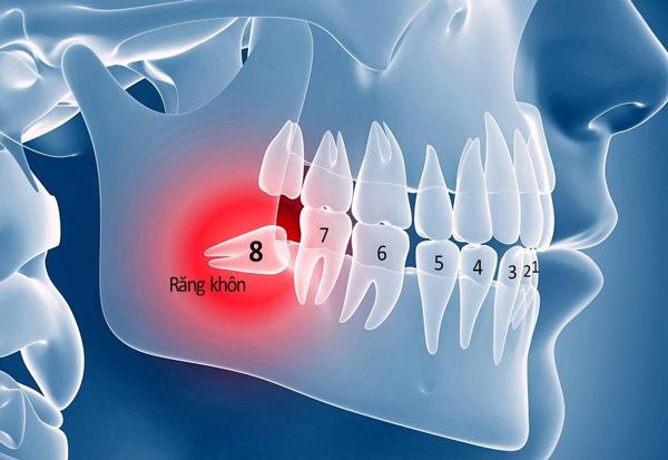 Răng khôn số 8 hàm dưới mọc lệch, mọc ngang, mọc ngầm nhiều hơn răng khôn hàm trên