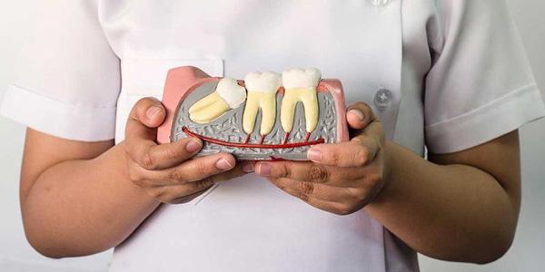 Chọn nha khoa uy tín để nhổ răng số 8