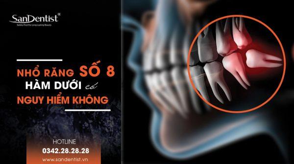 Nhổ răng khôn số 8 hàm dưới có nguy hiểm không?