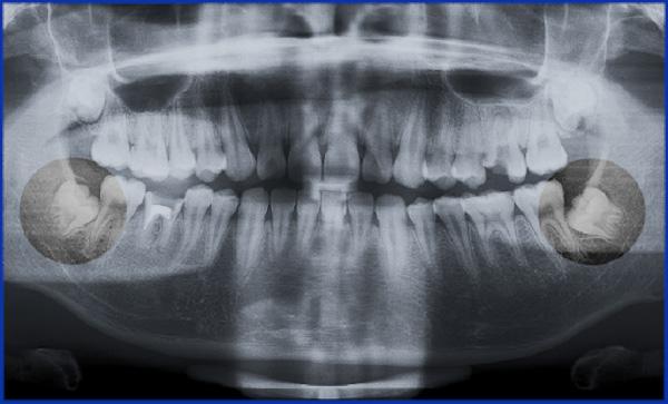 Răng khôn số 8 là gì?