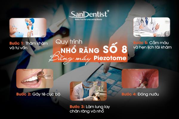 Quy trình nhổ răng khôn số 8 bằng máy Piezotome