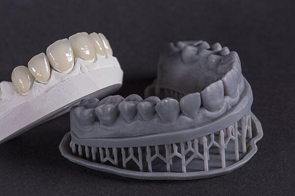 Phủ răng sứ là phương pháp nha khoa hiện đại, giúp khắc phục các khuyết điểm răng