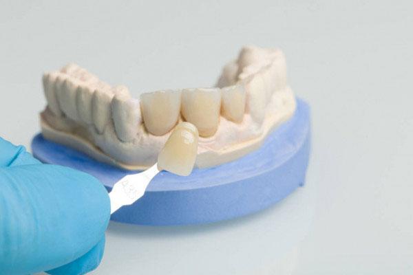Nhiều người lầm tưởng răng sứ mỏng nên dễ bong và hư hỏng