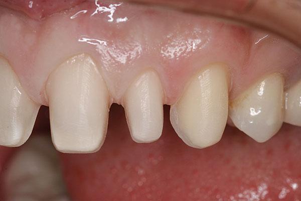 Hiểu lầm rằng phục hình bằng phương pháp phủ sứ phải mài nhỏ răng