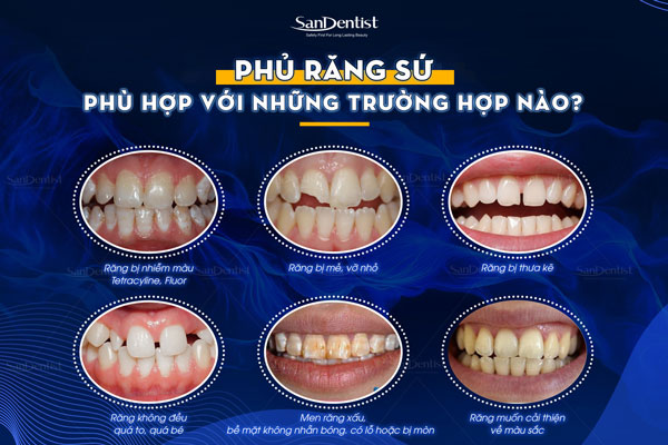 Một số trường hợp phủ răng sứ thẩm mỹ cho kết quả hoàn hảo