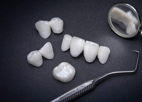 Phủ răng sứ - Giải pháp nha khoa hiện đại khắc phục các khuyết điểm răng