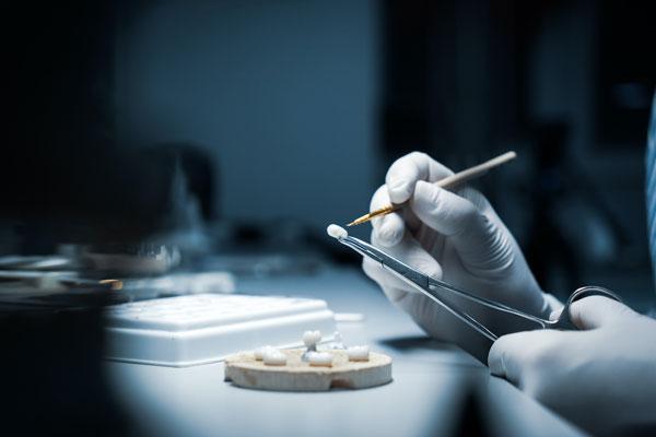Chế tác răng sứ đòi hỏi sự tỉ mỉ cao