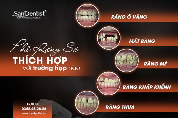 Phủ răng sứ thẩm mỹ thích hợp để phục hình các trường hợp răng khiếm khuyết