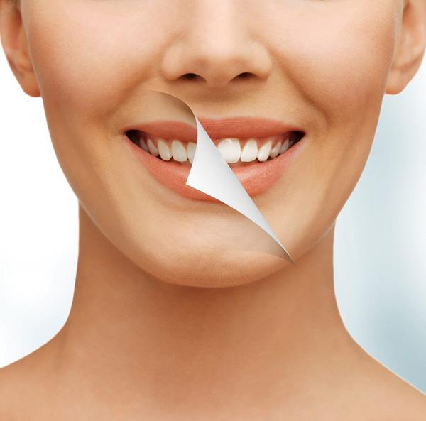 Khắc phục mọi khuyết điểm của răng