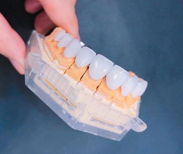 Quy trình bọc răng sứ như thế nào?