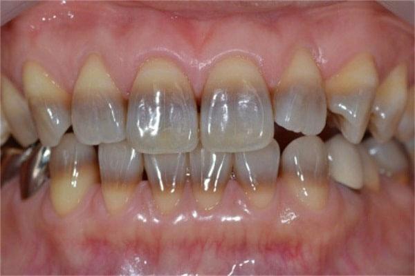 Răng chuyển sang màu vàng, đen, xám xanh, nâu,... do bị nhiễm Tetracycline