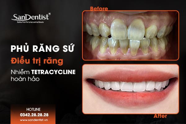 Với các trường hợp răng nhiễm Tetracycline nặng phủ răng sứ là lựa chọn tuyệt vời