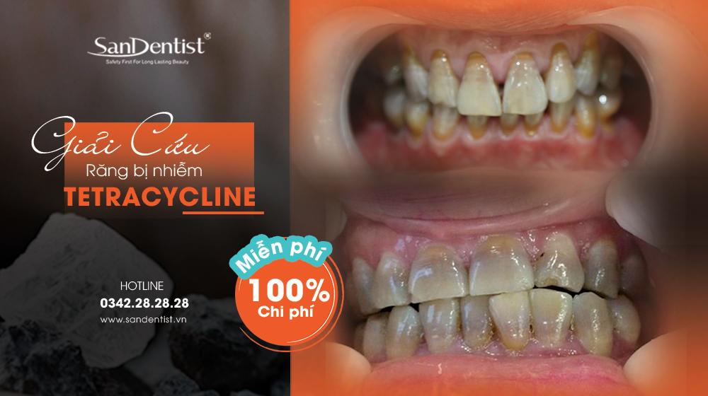 Ưu đãi miễn phí 100% chi phí điều trị răng bị nhiễm Tetracycline