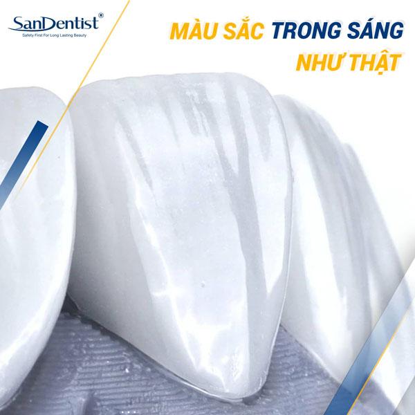San Dentist quy tụ các dòng răng sứ cao cấp chuẩn Châu Âu với tính thẩm mỹ tuyệt vời