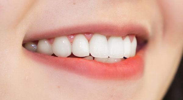 Công nghệ mô phỏng nụ cười, thiết kế nụ cười toàn diện