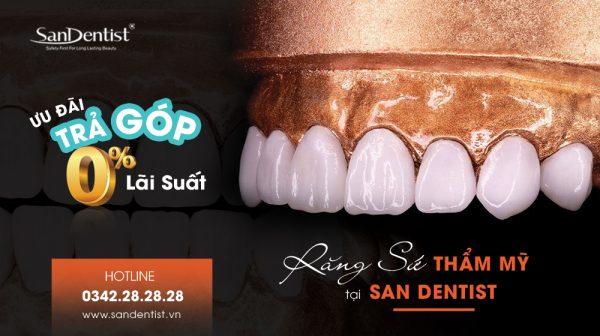 Ưu đãi trả góp 0% lãi suất tại San Dentist