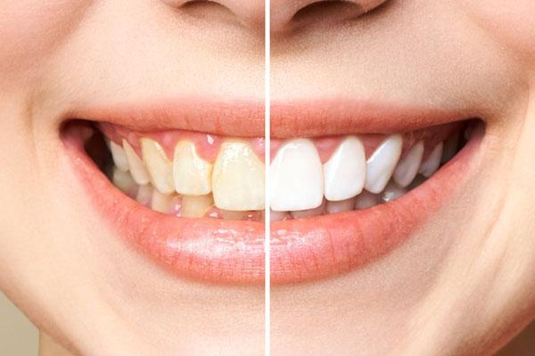 Bọc răng sứ giúp phục hình hoàn mỹ các khuyết điểm răng