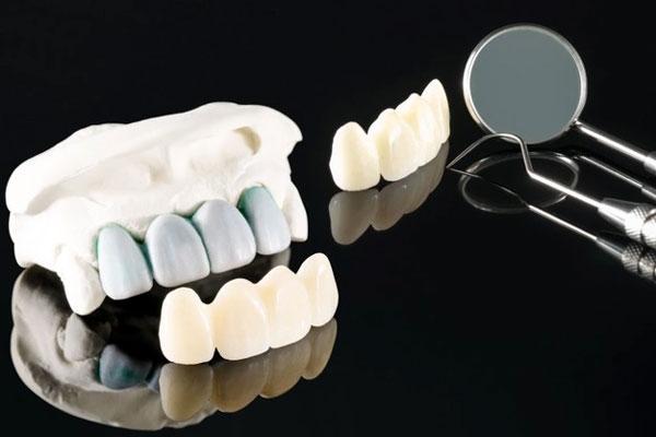Bọc răng sứ là một trong những phương pháp thẩm mỹ răng đang rất được ưa chuộng hiện nay
