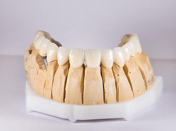 Bọc răng sứ giá bao nhiêu? - Những yếu tố ảnh hưởng!