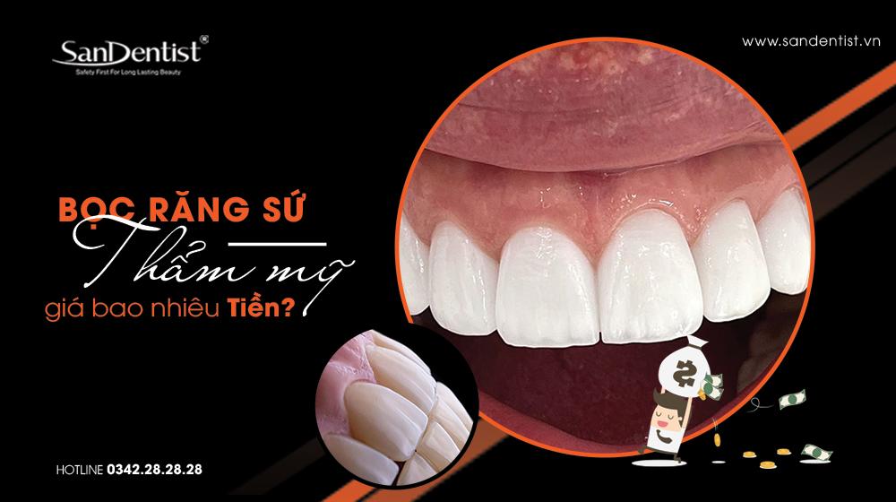 Những yếu tố ảnh hưởng đến bọc răng sứ giá bao nhiêu