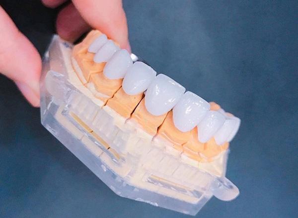 răng sứ Lava Ultimate Plus được đông đảo khách hàng tin tưởng lựa chọn và đánh giá cao