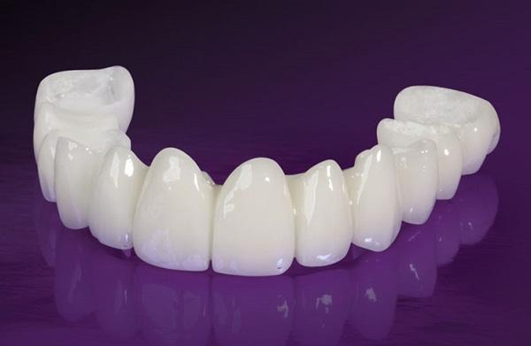 Răng sứ Nacera Plus xuất xứ từ Đức