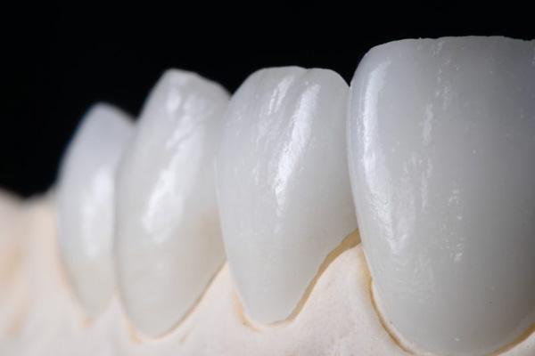 Răng sứ Laminate Plus có xuất xứ từ Mỹ