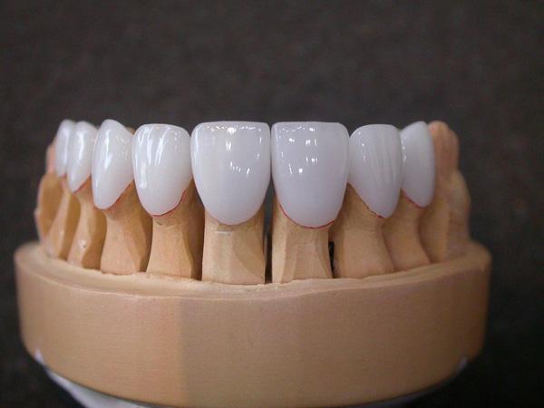 Răng sứ Invy Ultra thuộc nhóm sứ phục hình