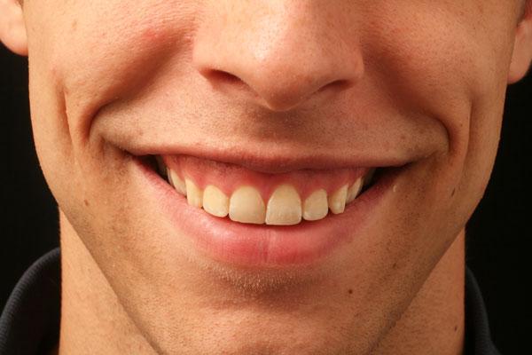 Đàn ông cười hở lợi ảnh hưởng không tốt đến tiền tài, sự nghiệp
