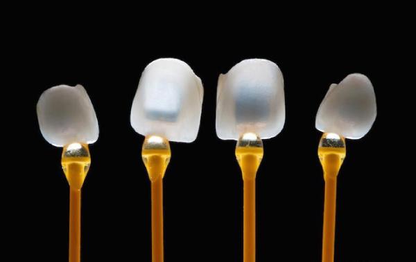 Mặt dán răng sứ Veneer siêu mỏng