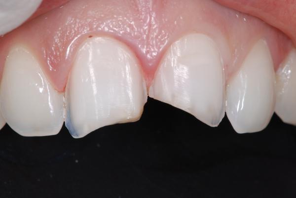 Dan sứ Veneer chỉ thích hợp với những tình trạng răng khiếm khuyết nhẹ