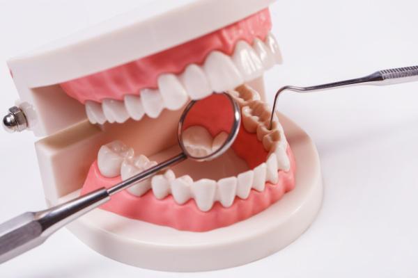 Sau khi dán sứ Veneer bạn cần chú ý chăm sóc răng miệng kỹ lưỡng