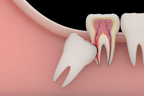 Răng khôn (răng hàm lớn thứ ba, răng số 8) là răng mọc cuối cùng của hàm