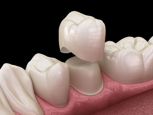 Phủ sứ không mài răng là phương pháp sử dụng vật liệu sứ cao cấp