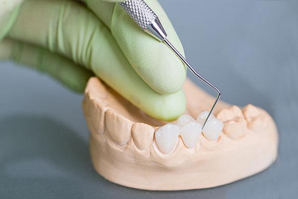 Phủ sứ không mài răng được khách hàng yêu thích và bác sĩ nha khoa đánh giá rất cao