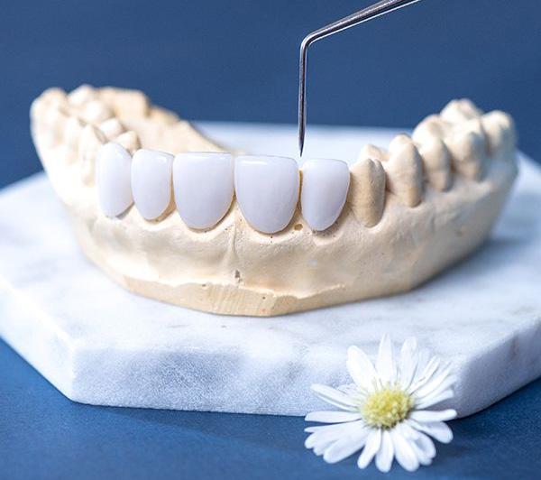 Phủ sứ răng sâu nhẹ