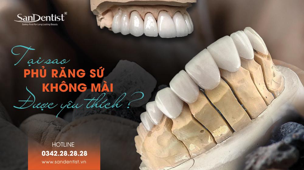 Tại sao phủ răng không mài được yêu thích?