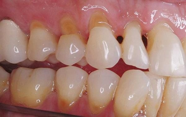 Hở cổ chân răng nếu sử dụng phủ sứ giá rẻ