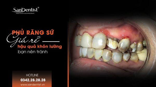 Phủ răng sứ giá rẻ hậu quả khôn lường bạn nên tránh