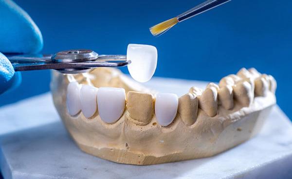 phương pháp làm răng sứ công nghệ tiên tiến nhất hiện nay