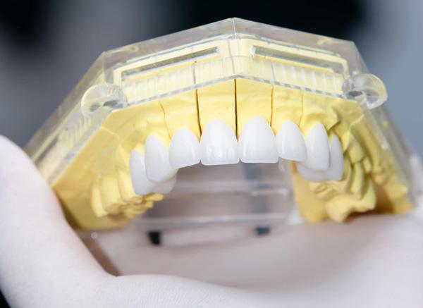 Làm răng sứ bao nhiêu tuỳ thuộc vào rất nhiều yếu tố