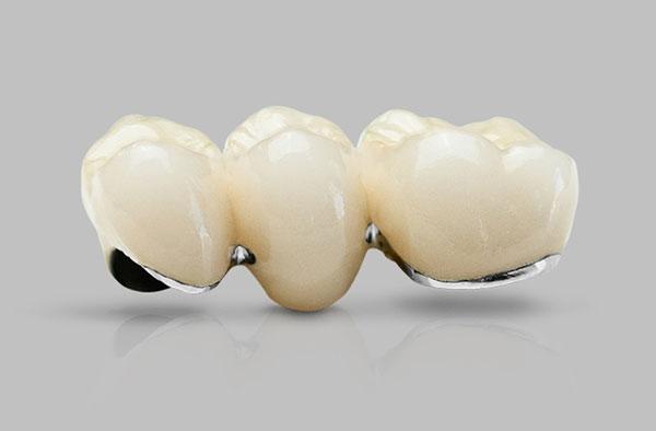 Răng sứ Titan có tuổi thọ tầm 5 - 7 năm
