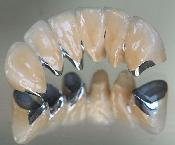 Độ bền của răng sứ kim loại chỉ từ 3 - 5 năm