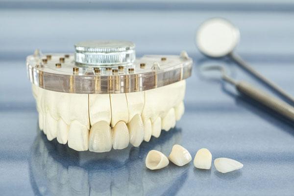 Bên cạnh chất liệu răng sứ, còn một vài yếu tố khác ảnh hưởng đến độ bền của răng sứ